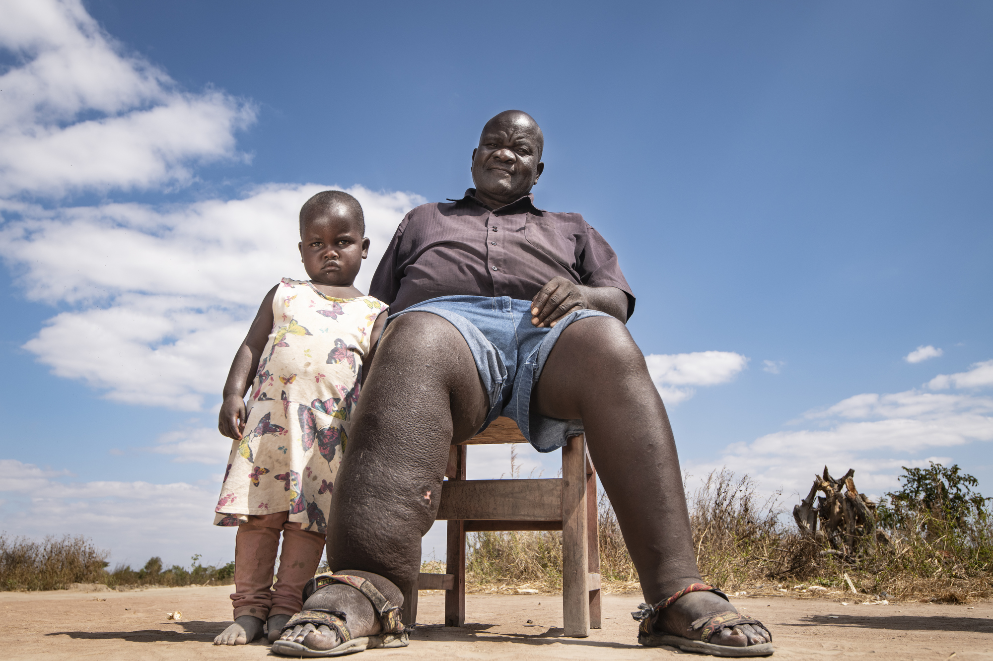 Malawi fights a crippling parasite