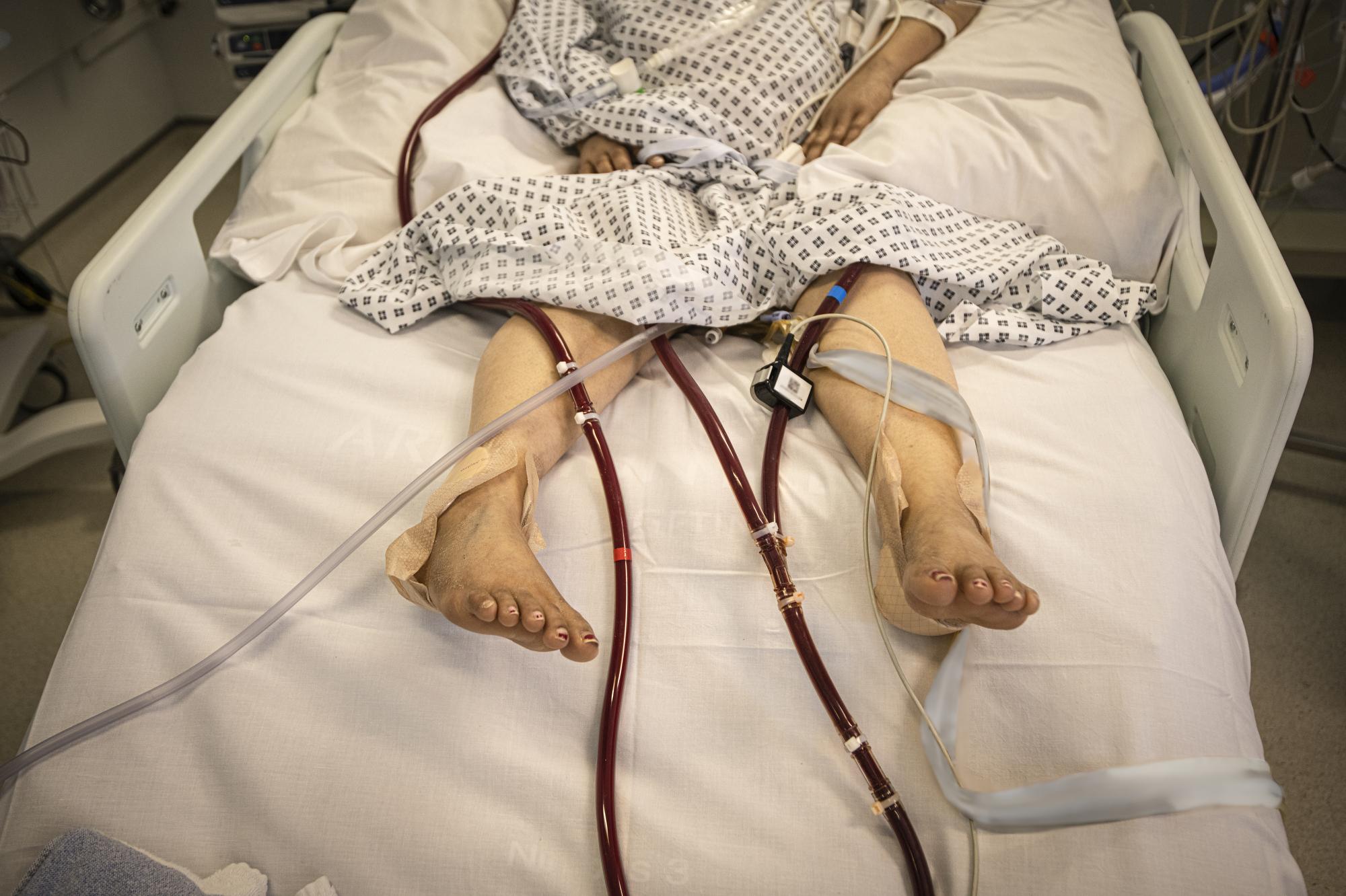 Covid 19 Intensive Care