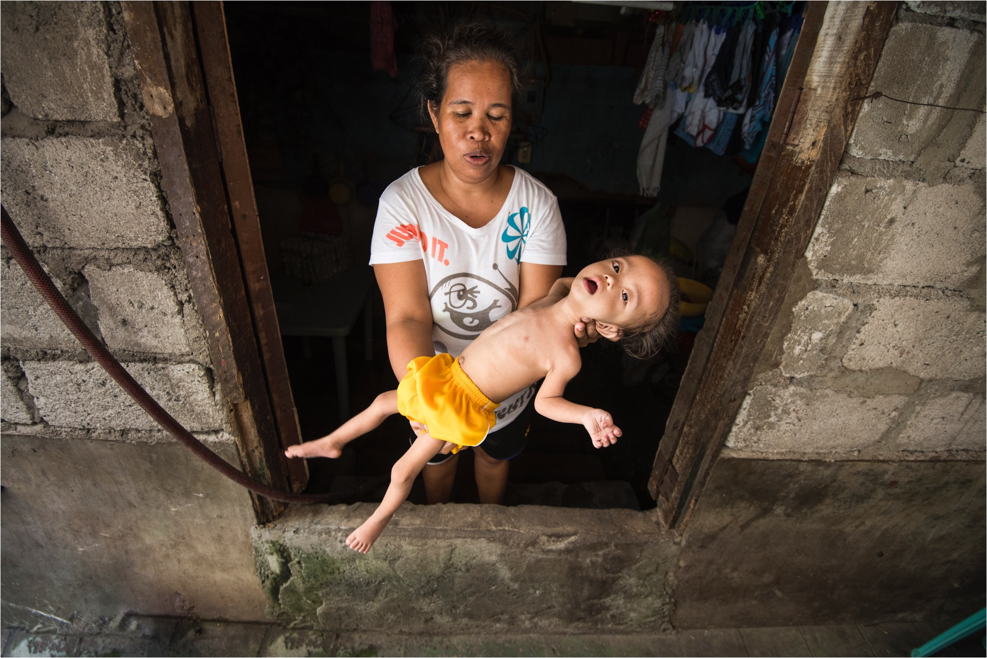 Stunting and Malnutrition